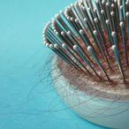 Saç Dökülmesini Önlemenin En Etkili 5  Yolu