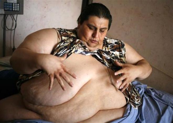 Bu Adam tam 519 Kilo Verdi