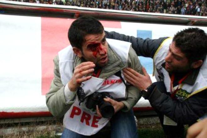 Taraftarın Taşları Gazeteciyi Yaraladı