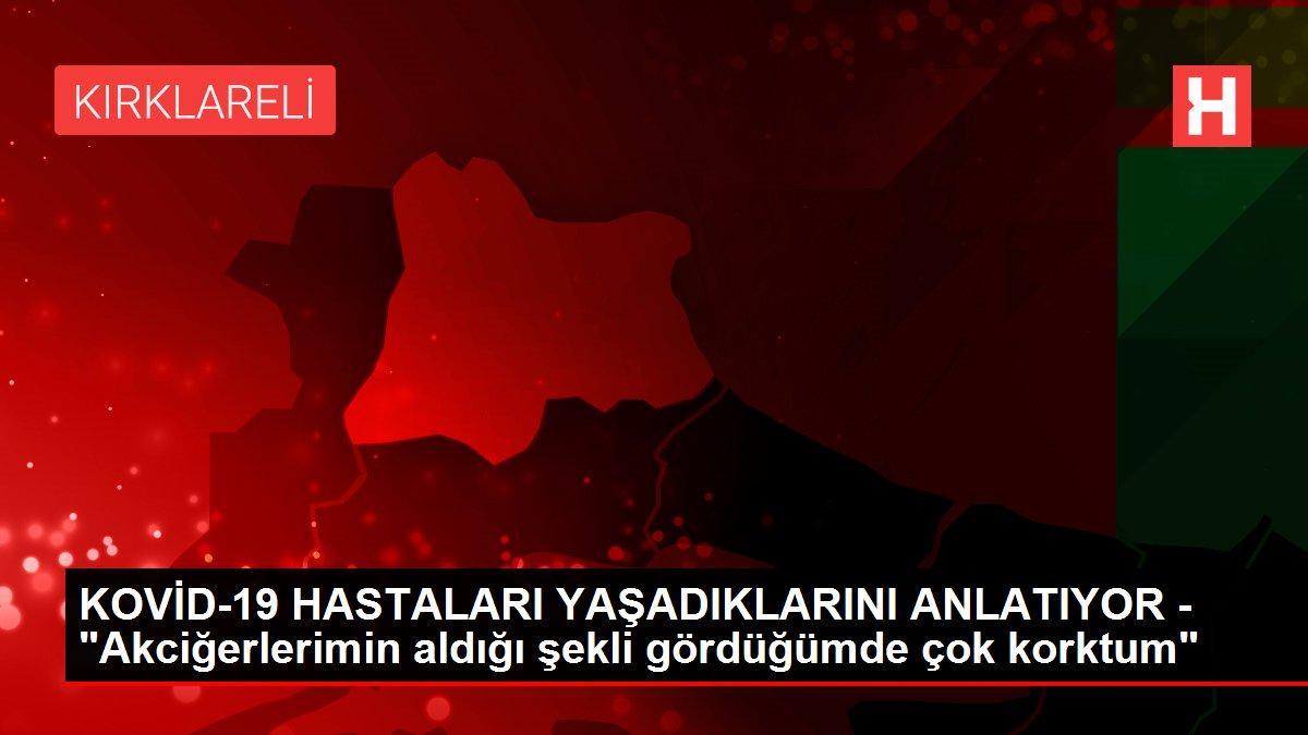 """KOVİD-19 HASTALARI YAŞADIKLARINI ANLATIYOR - """"Akciğerlerimin aldığı şekli gördüğümde çok korktum"""""""